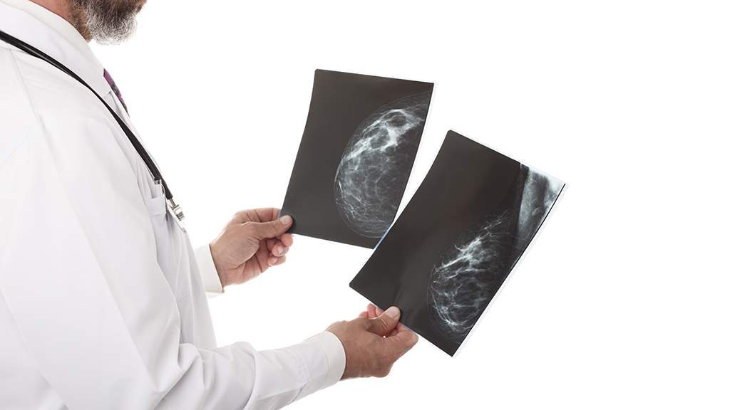 Doctor looking at a mammography isolated over white background copy space